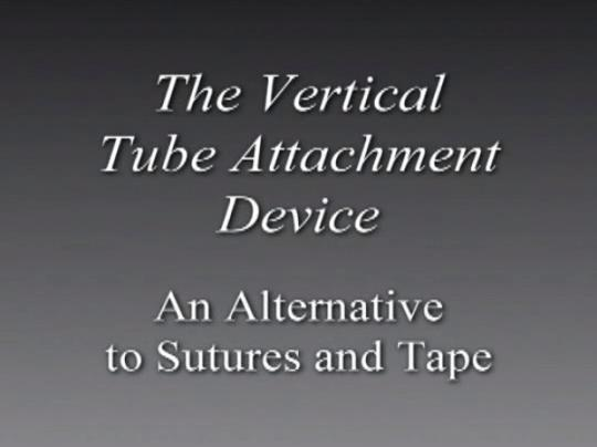 Vertical Tube Attachment Device (VTAD) | Hollister US