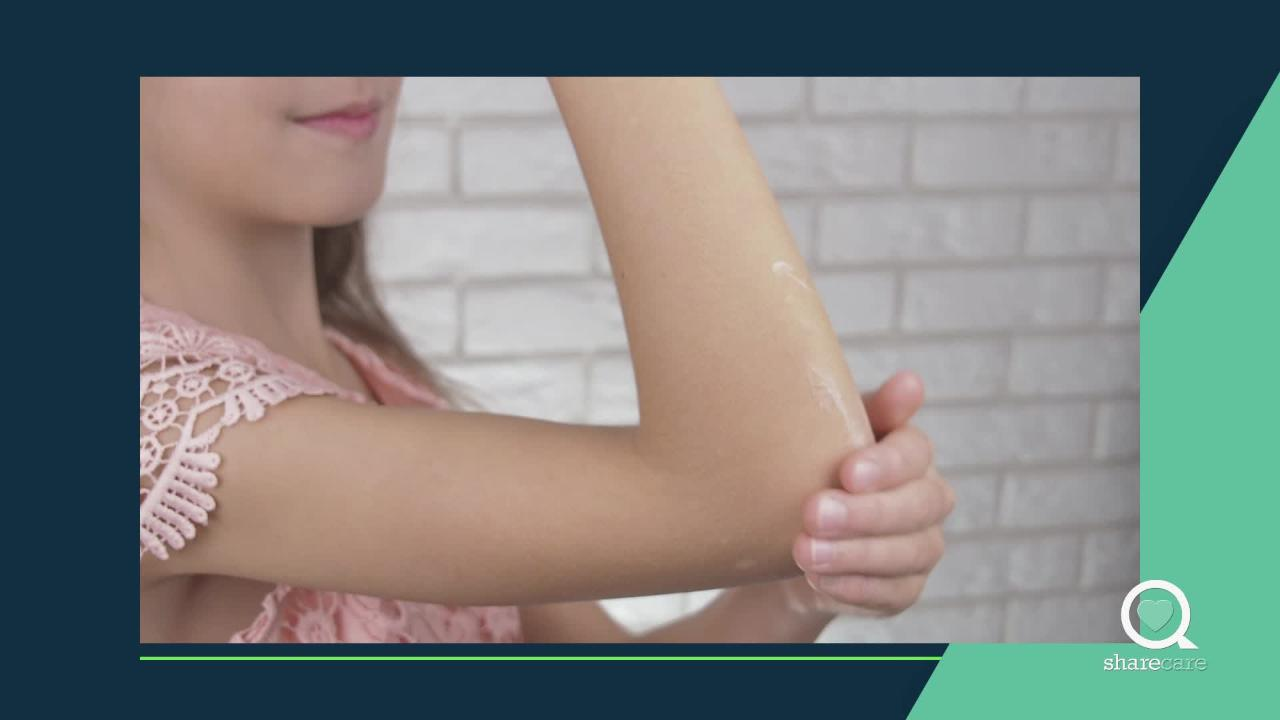 Tips to Control Pediatric Eczema