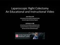 An Educational and Instructional Video for a Laparoscopic Right Colectomy