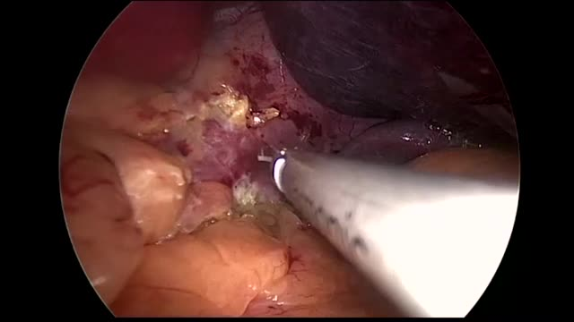 Laparoscopic Sleeve Gastrectomy  **Advanced Fellows Editing Workshop Winner**
