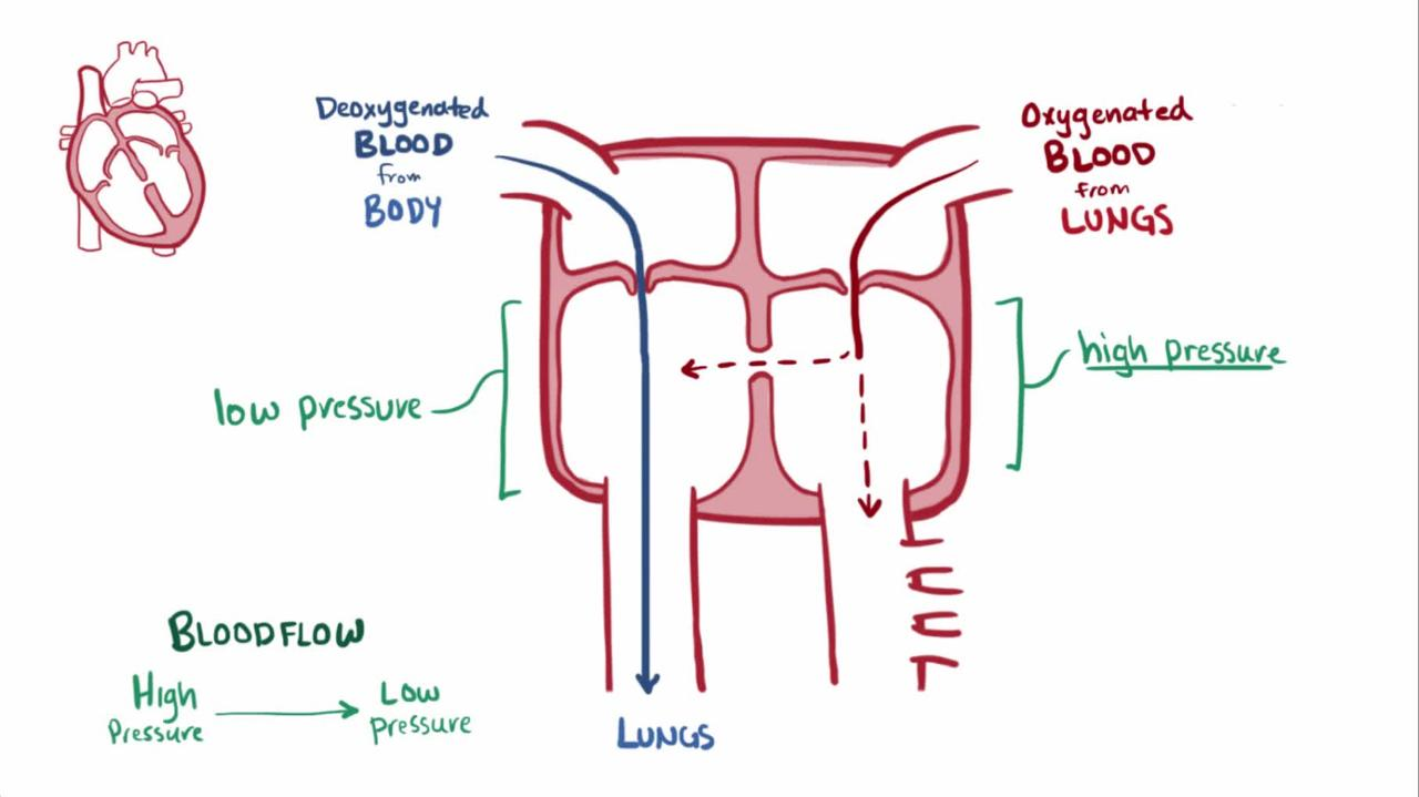 Ventricular septal defect vsd pediatrics merck manuals overview of ventricular septal defect nvjuhfo Gallery