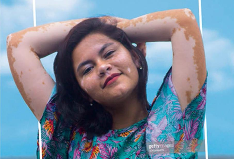 Dove and Getty Images debut inclusive photo library to help industry depict women as they really are