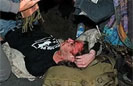 Vet Hit in Face by Police Projectile