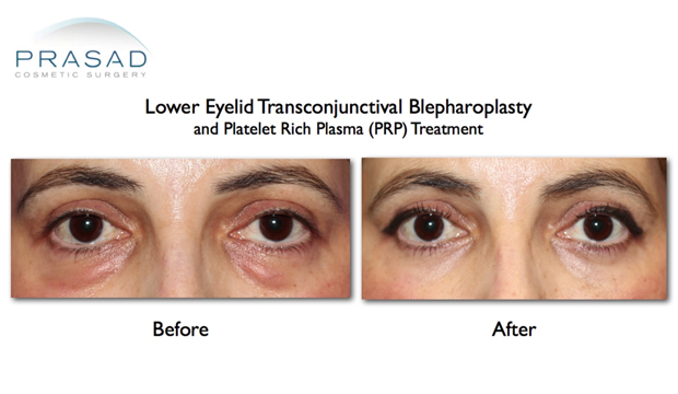 Enucleation, Eye - procedure, recovery, removal, pain