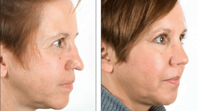 Can A Rhinoplasty Help With A Nose Tip That Is Too Close