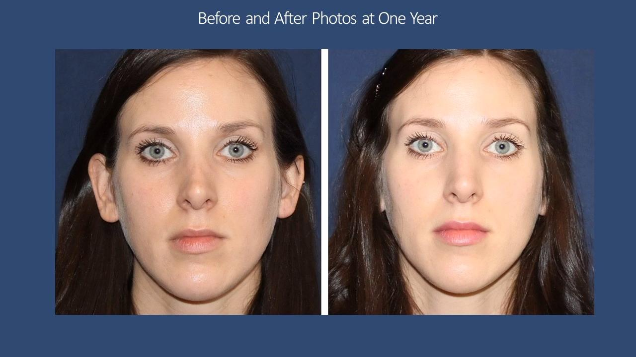 How Is The Bellafill For Nose Job Work? Doctor Answers, Tips