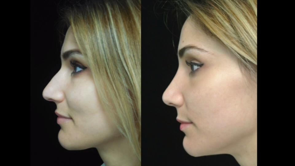 Difference Between Closed And Open Rhinoplasty? Doctor