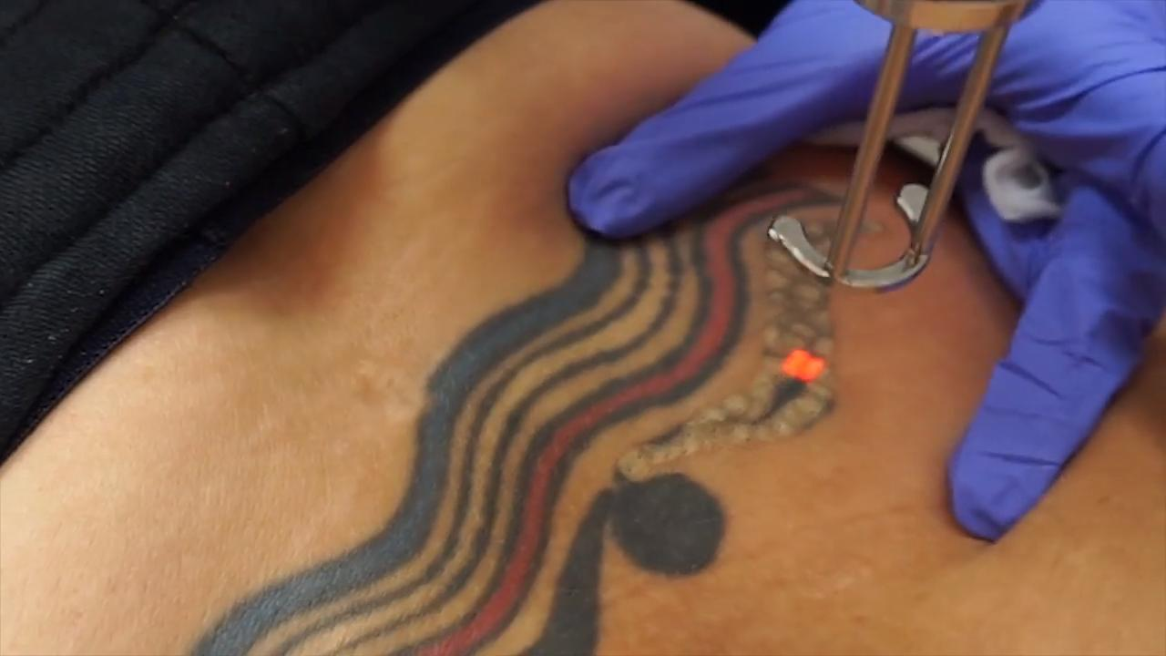 Tattoo Removal - First Session - Video - RealSelf