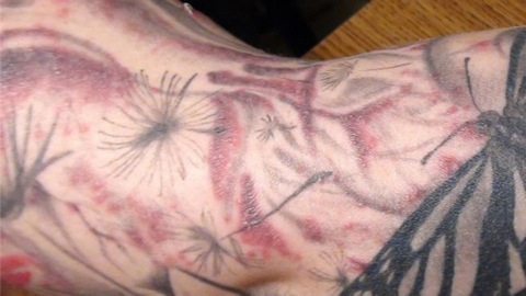 Tattoo Health and Safety Tips - Consumer Reports