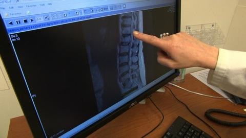 Imaging tests for lower-back pain
