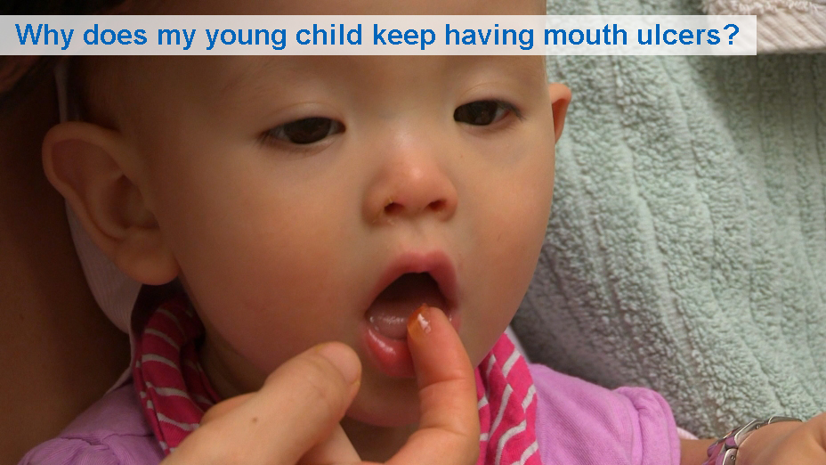 NHS VIDEOS | Why does my toddler keep having mouth ulcers