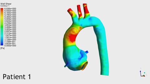 Blood flow analysis of the aortic arch using computational
