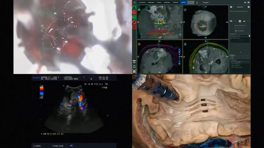 Robotically-Operated Video Optical Telescopic-microscopy Resection