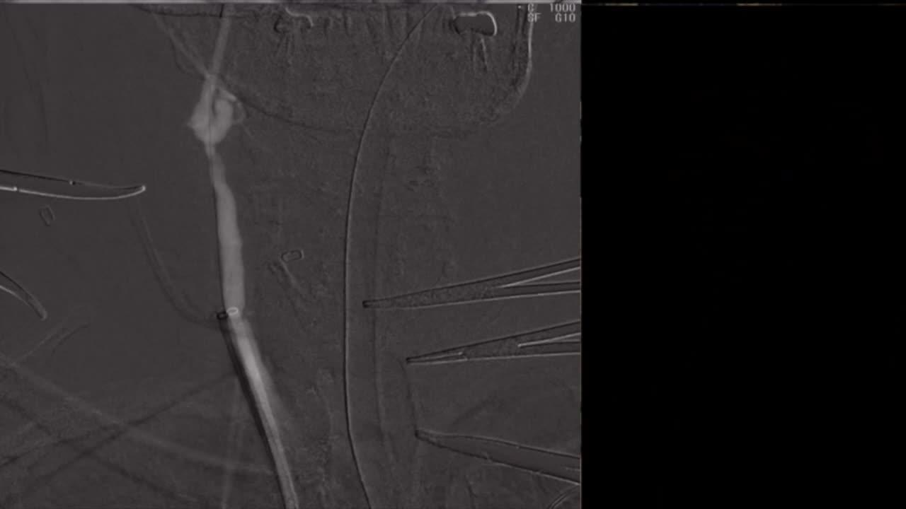 Direct Cervical Carotid Stenting and Angioplasty of Right Internal