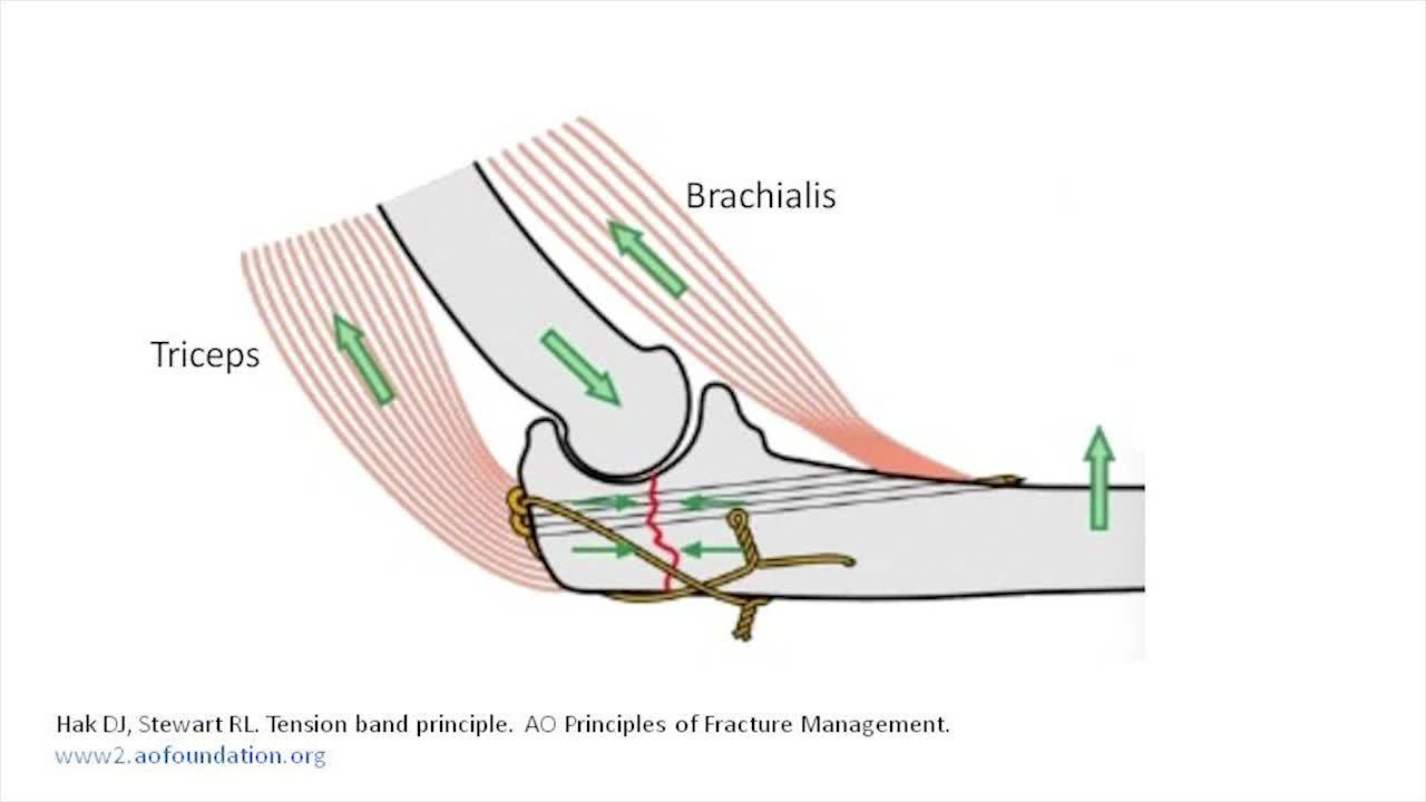 Astonishing Tension Band Wire Fixation Of Olecranon Fractures Jbjs Essential Wiring Cloud Hisonuggs Outletorg