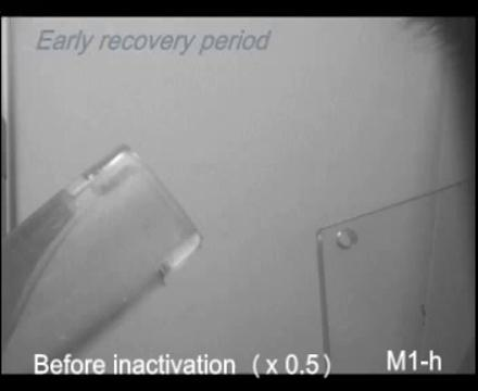 Temporal Plasticity Involved in Recovery from Manual Dexterity