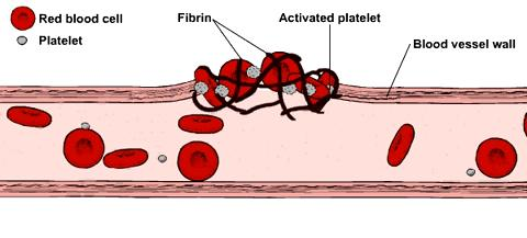 Blood Clots: Plugging the Breaks