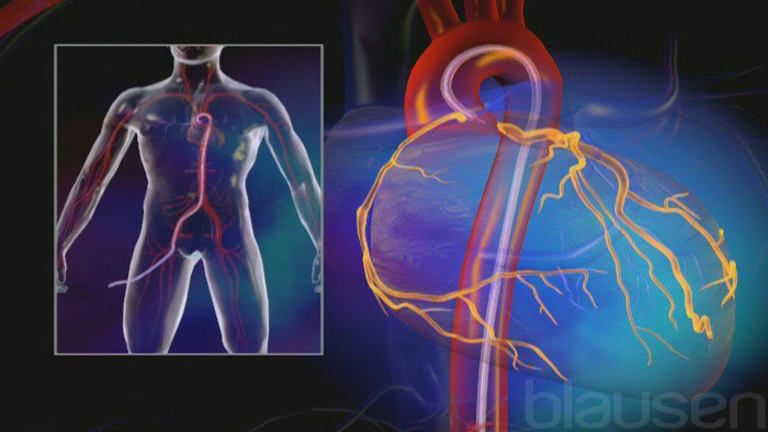 Cardiac Catheterization And Coronary Angiography Heart And Blood