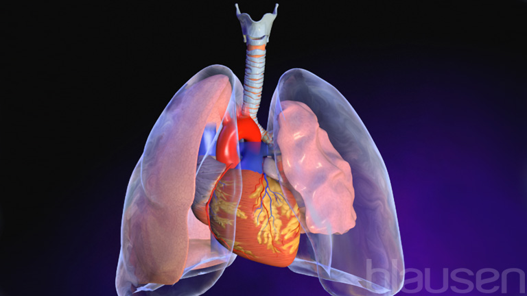 pleural effusion - lung and airway disorders