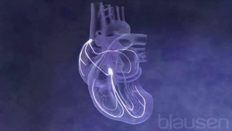 Overview of Cardiac Conduction