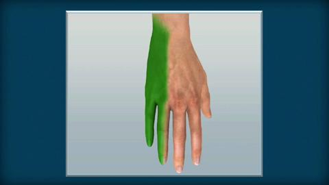 How to Do an Ulnar Nerve Block