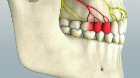 How To Do a Middle Superior Alveolar Nerve Block to...