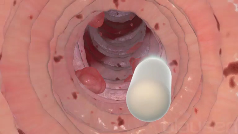 Endoscopia con videocapsula