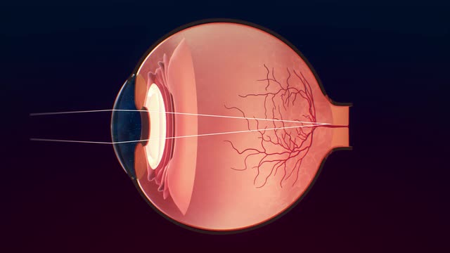 structure and function of the eyes - eye disorders