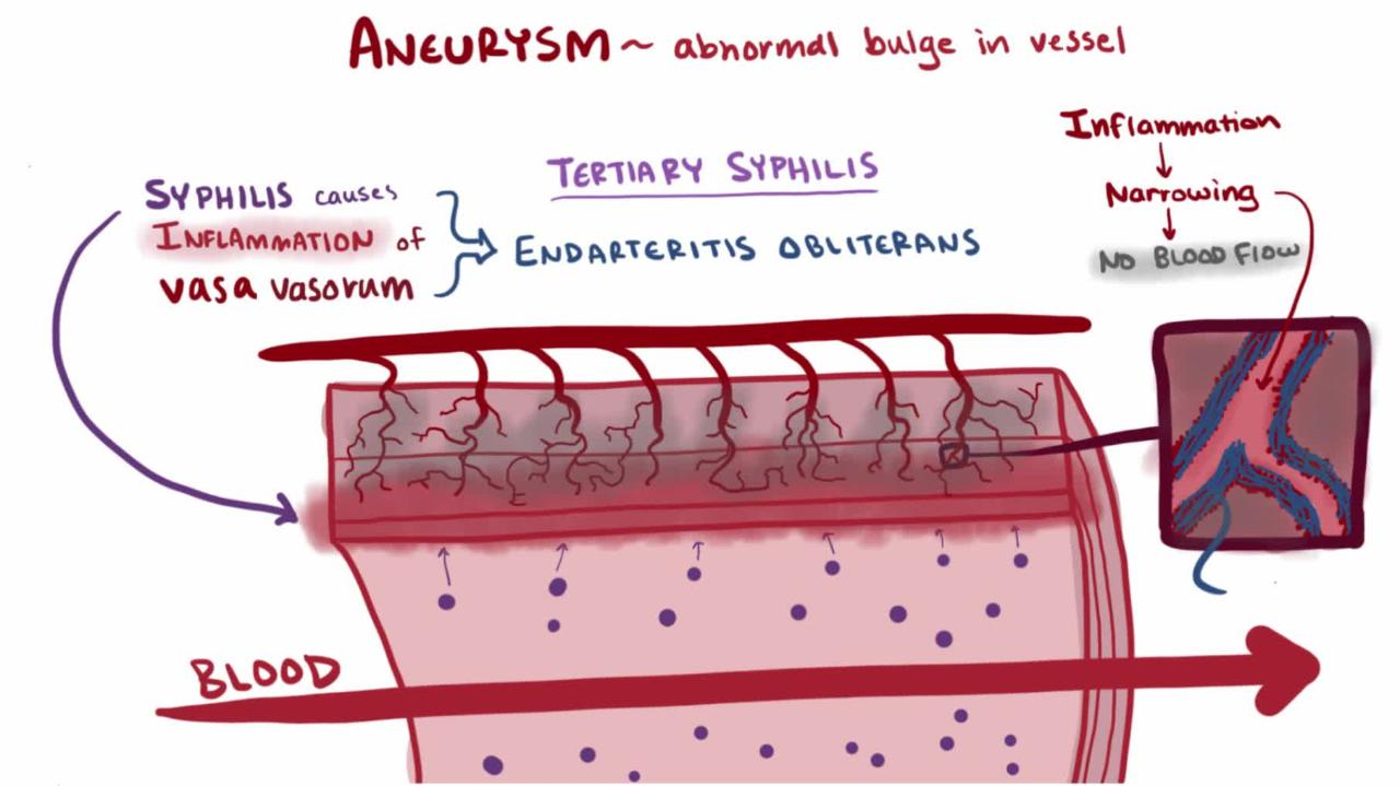 Overview of Aneurysms