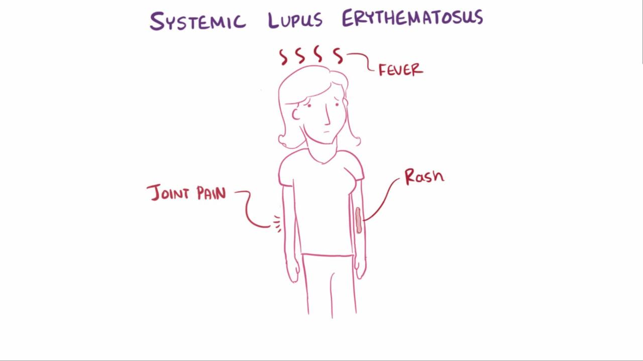 Systemic Lupus Erythematosus Sle Musculoskeletal And Connective