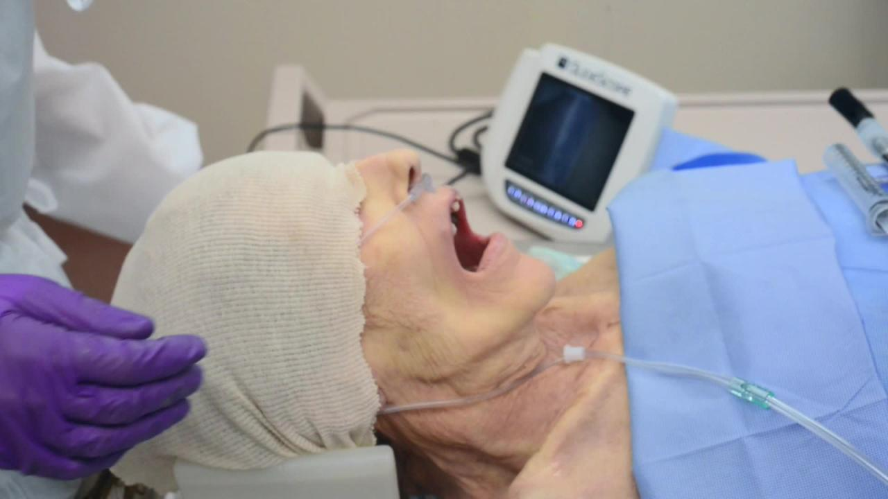 How to do Orotracheal Intubation Using Video Laryngoscopy