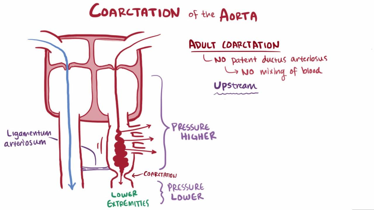 Overview of Coarctation of the Aorta