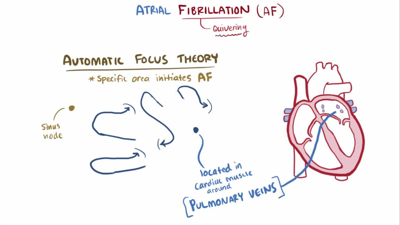 Atrial flutter: causes, diagnosis, treatment 75