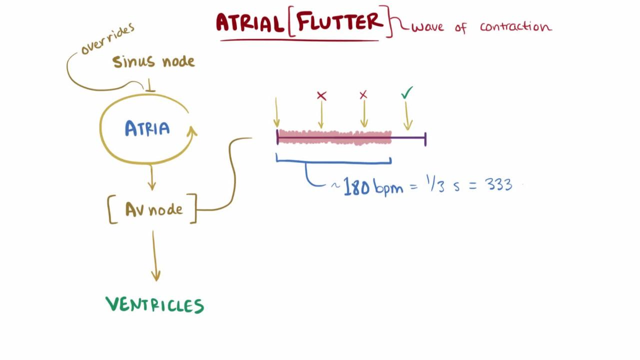 Atrial flutter: causes, diagnosis, treatment 32
