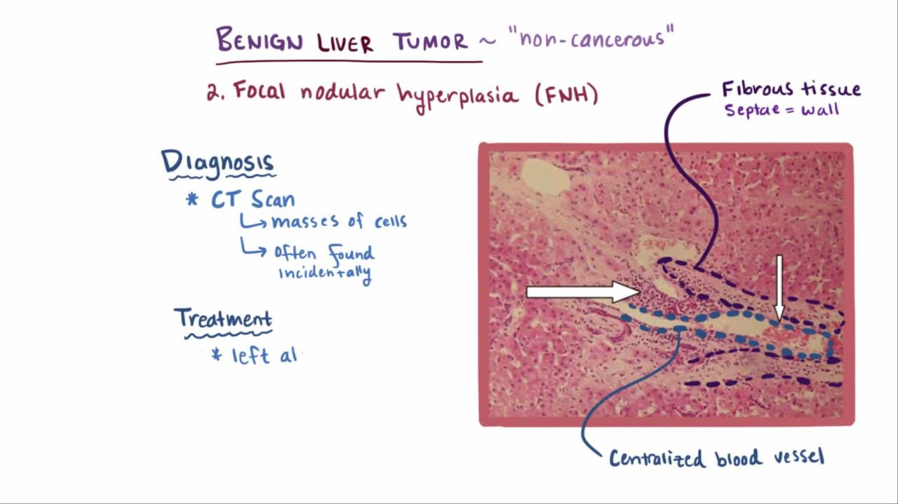Overview of Benign Liver Tumors