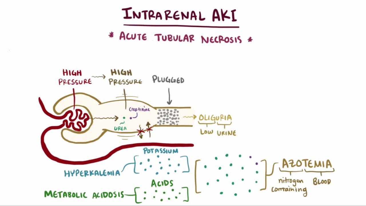 Overview of Intrarenal Acute Kidney Injury
