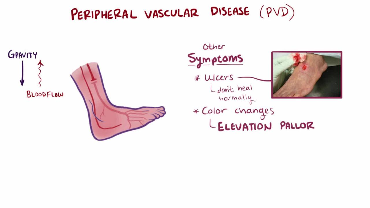 Overview of Peripheral Arterial Disease
