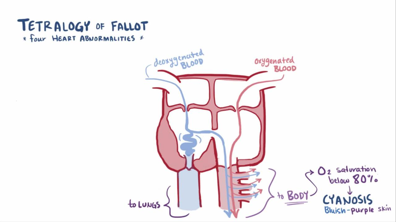 Overview of Tetralogy of Fallot