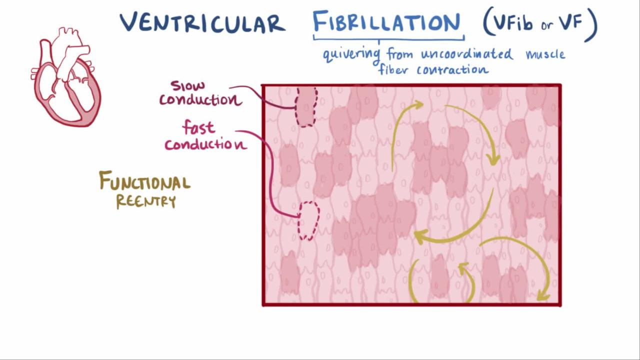 Overview of Ventricular Fibrillation