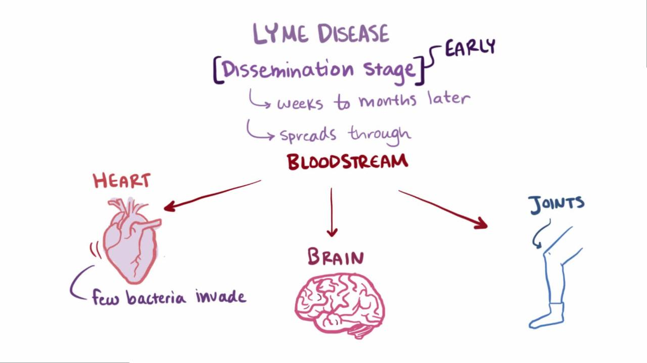 Overview of Lyme Disease