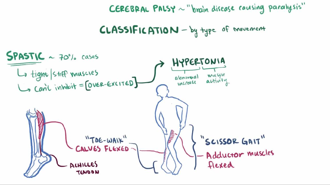 Overview of Cerebral Palsy