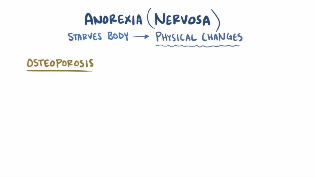 Overview of Anorexia Nervosa