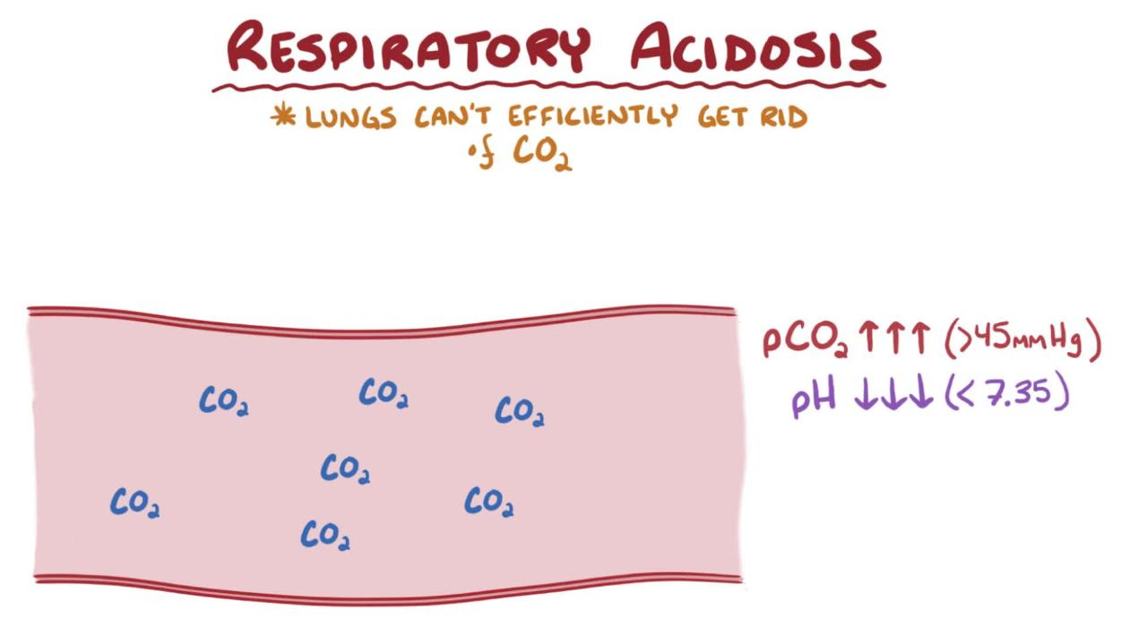 Overview of Respiratory Acidosis
