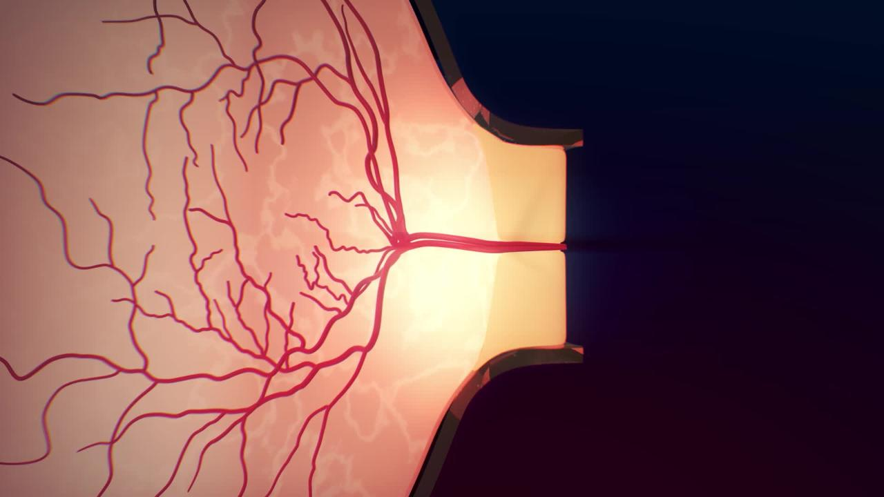 The Retina and Optic Nerve