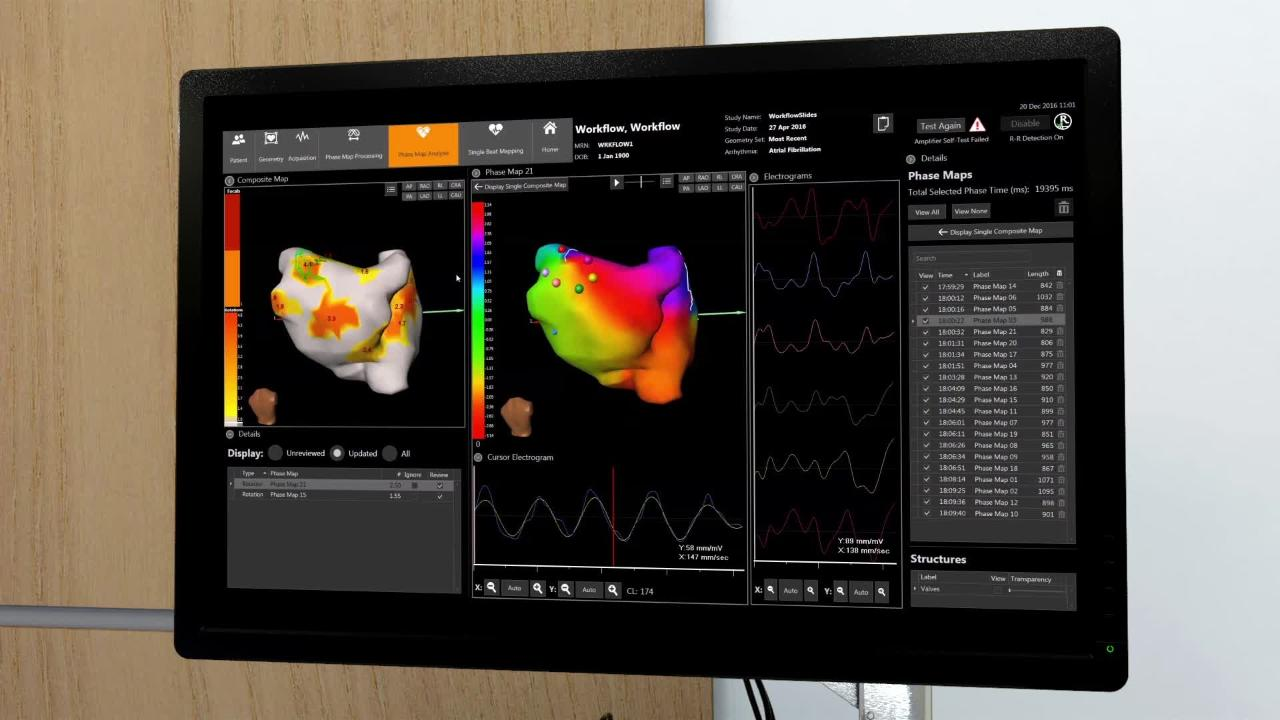 Mapping WorksDaic System Cardioinsight How Anatomical The Electro wukOXZliTP