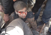 Syrian Boy Buried Alive in Rubble