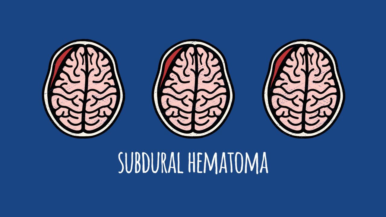 Association of Antithrombotic Drug Use With Subdural Hematoma Risk ...