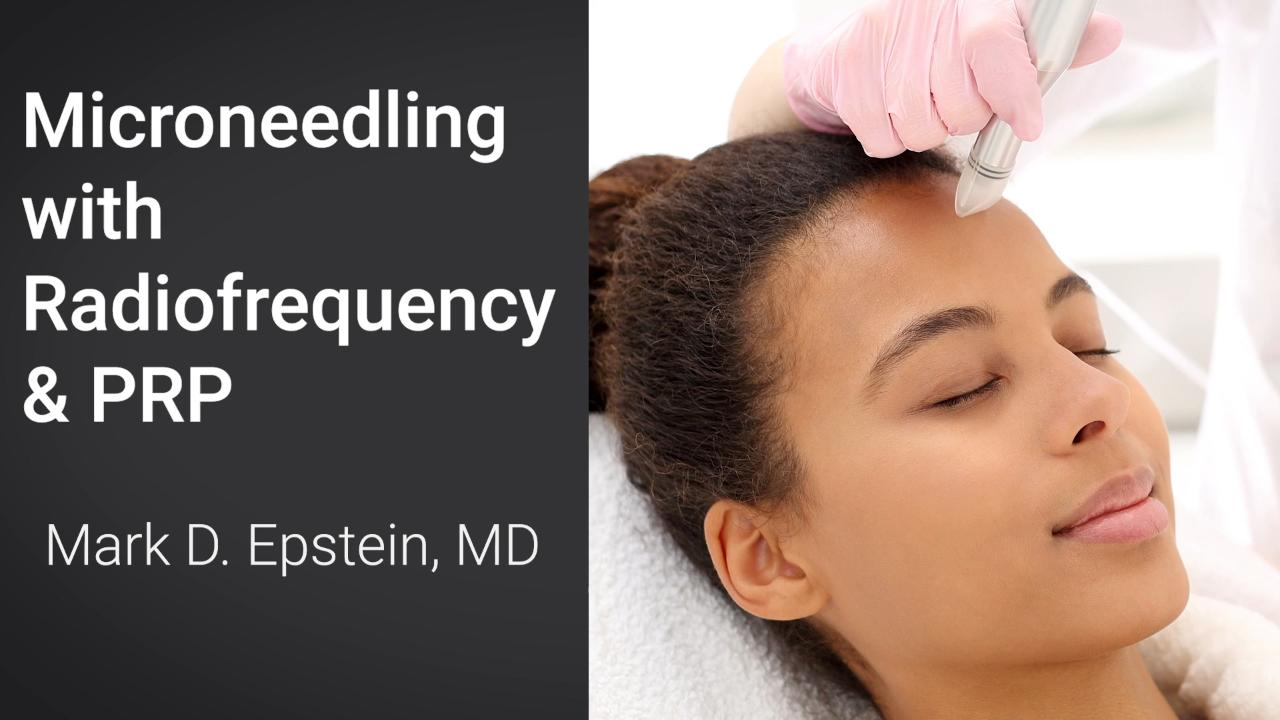 PRP With Microneedling Long Island | Facial Rejuvenation